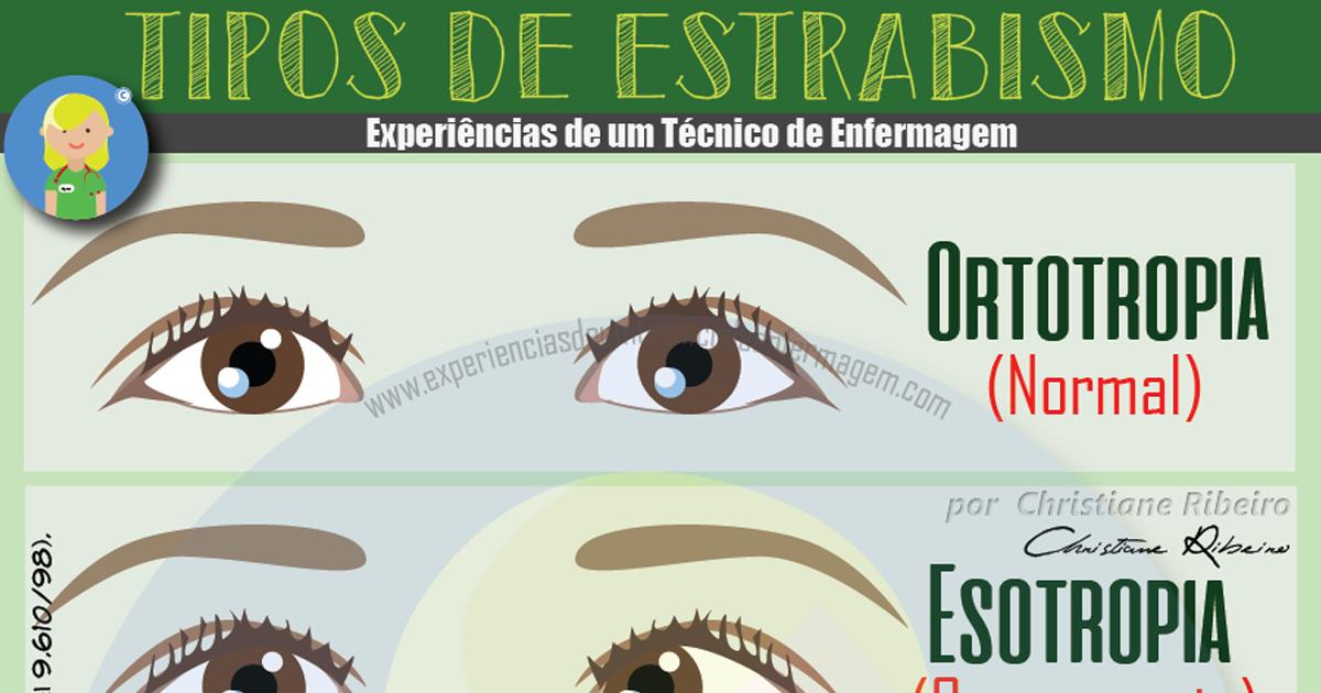 Estrabismo dos Olhos